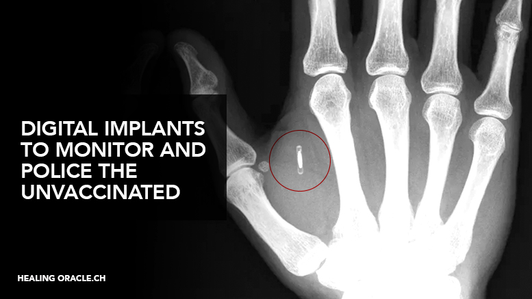digital ID implants for vaccines